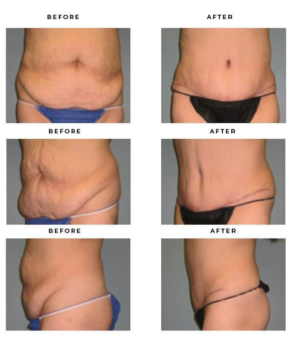 Before & After Images- Abdominoplaty-Tummy Lift Scars and Results - Chief of Plastic Surgery- Dr. Della Bennett, MD. of Gemini Plastic Surgery - Best Board Certified Plastic Surgeon in Rancho Cucamonga. Study #4158