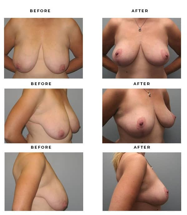 Before & After Pics- Breast Augmentation and Lift Surgery. Scars and End Results - Chief of Plastic Surgery- Dr. Della Bennett, MD. of Gemini Plastic Surgery - Top Breast Lift Surgeon- Top Ranked Board Certified Plastic Surgeon in Los Angeles, Orange County, Inland Empire & Riverside County, Ca. Case Study #3286