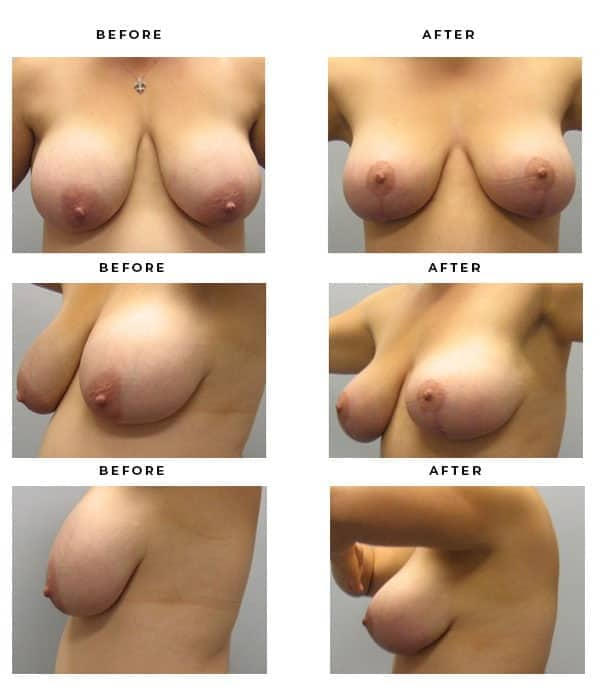 Before & After Images- Breast Implant and Lift Surgeon. Scars, End Results, Recovery Gallery - Chief of Plastic Surgery- Dr. Della Bennett, MD. of Gemini Plastic Surgery - World Renowned Breast Lift Surgeon- Best Board Certified Plastic Surgeon in Los Angeles, Orange County, Inland Empire & Riverside County, Ca. Case Study #3302