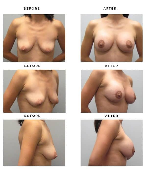 Before & After Galleries- Breast Augmentation and Lift Surgeon. Scars, End Results, Recovery Gallery - Chief of Plastic Surgery- Dr. Della Bennett, MD. of Gemini Plastic Surgery - Inland Empire's most popular Breast Lift Surgeon- Best Board Certified Plastic Surgeon in Los Angeles, Orange County, Inland Empire & Riverside County, Ca. Case Study #3310