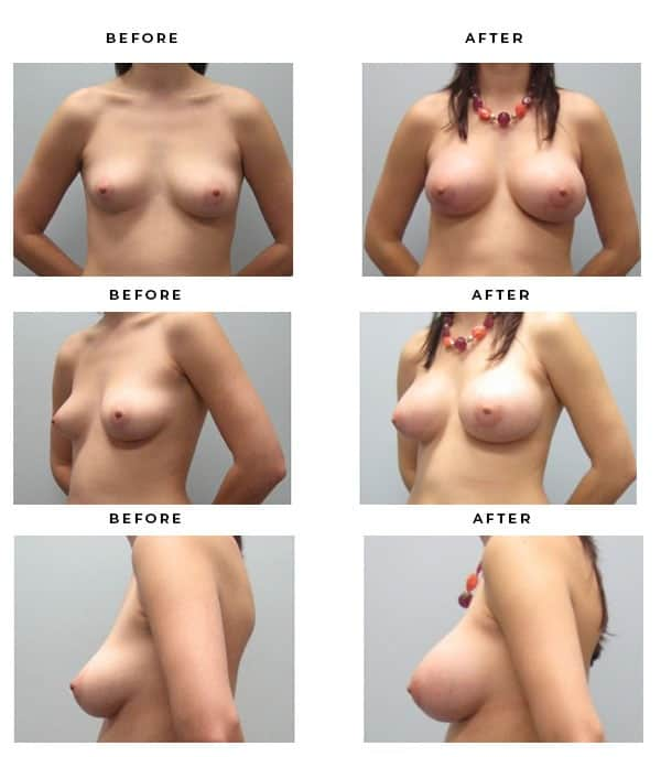 Before & After Photos- Breast Augmentation and Lift Surgery Information. Scars, End Results, Recovery Gallery - Chief of Plastic Surgery- Dr. Della Bennett, MD. of Gemini Plastic Surgery - Top ASPS Certified Breast Lift Surgeon- Best Board Certified Plastic Surgeon in Los Angeles, Orange County, Inland Empire & Rancho Cucamonga, Ca. Case Study #3326