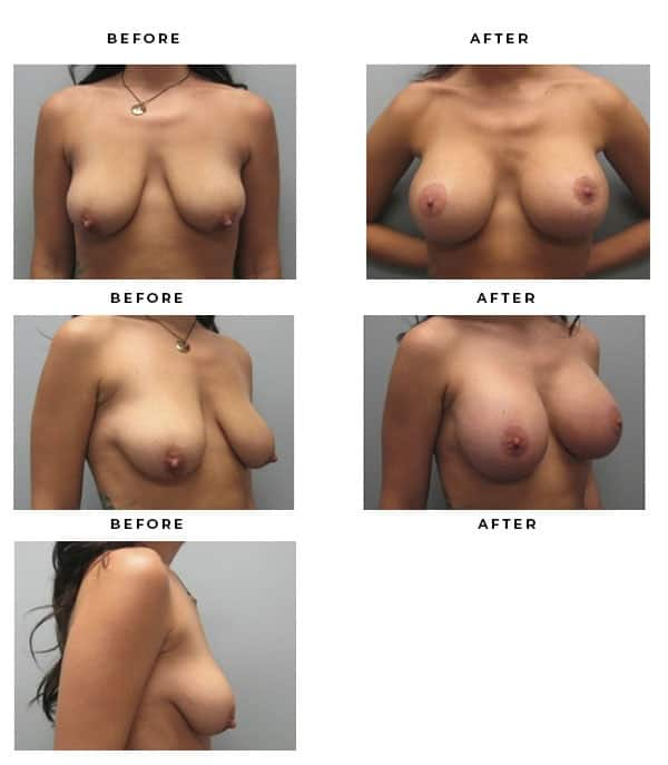 Before & After Pictures- Breast Augmentation and Lift Surgery Galleries. Scars, End Results, Recovery Gallery - Chief of Plastic Surgery- Dr. Della Bennett, MD. of Gemini Plastic Surgery - ASPS Certified Breast Lift Surgeon- Top Board Certified Plastic Surgeon in Los Angeles, Orange County, Inland Empire & Rancho Cucamonga, Ca. Case Study #3334