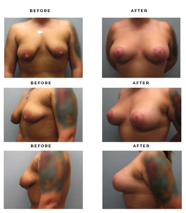 Before & After Images - Breast Augmentation and Lift Surgery Galleries. Scars, End Results, Recovery Gallery - Award Winning Chief of Plastic Surgery- Dr. Della Bennett, MD. of Gemini Plastic Surgery - See Results for Breast Lift Surgeon- Best Board Certified Plastic Surgeon in Southern California. Case Study #4224