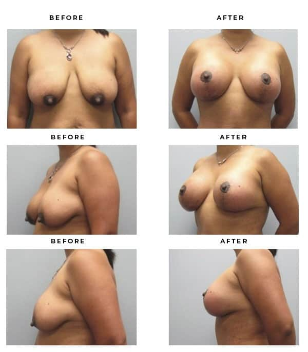 Before & After Pics- Mommy Makeover- Saline Breast Augmentation, breast lift & tummy tuck - Dr. Della Bennett, MD. of Gemini Plastic Surgery in Rancho Cucamonga. Top Board Certified Plastic Surgeon. Case Study #2283
