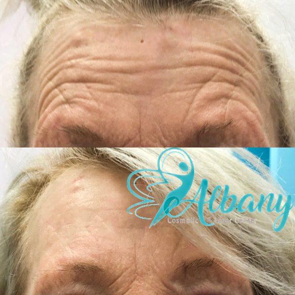 Botox treatment in Edmonton