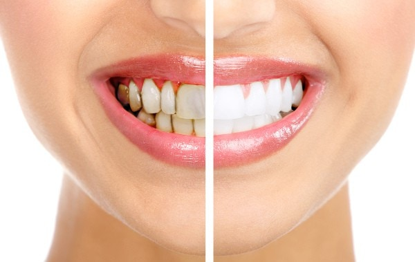 Teeth Whitening Treatment in Costa Rica