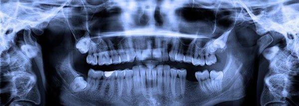 Röntgenaufnahme der Weisheitszähne