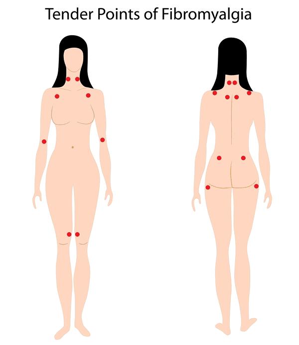 tender points for fibromyalgia