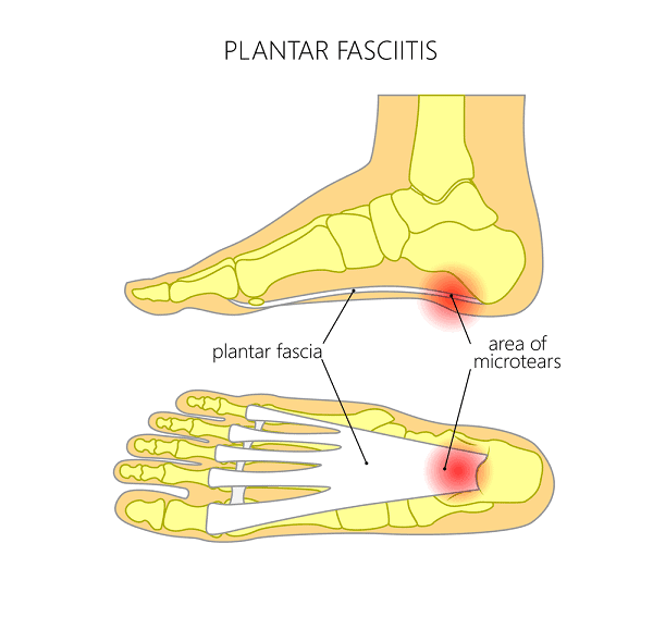 Acupuncture for Plantar Fasciitis - Discectomy