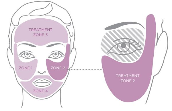Tria Treatment Zones