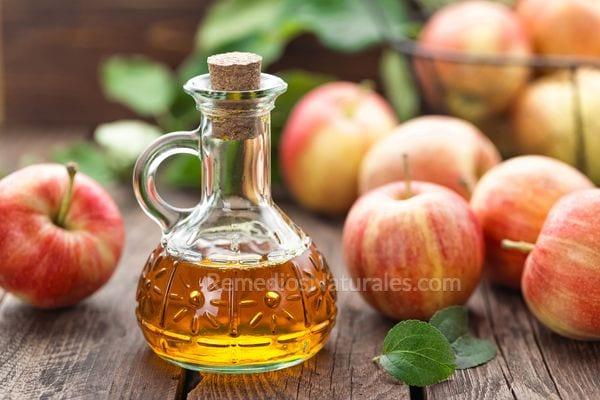 Remedios caseros para las varices: vinagre de manzana