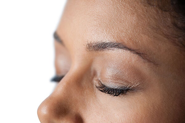 Woman After Eyelid Surgery