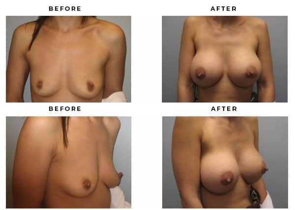 Breast Implant Photos Provided by Gemini Plastic Surgery of Southern California.