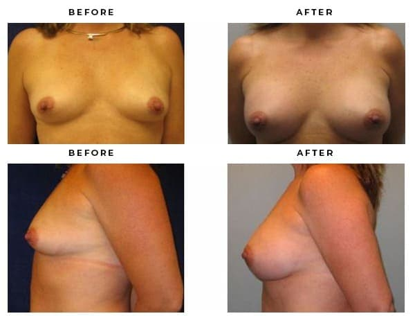 Before & After Pics of Boob Jobs by Gemini Plastic Surgery's Top Plastic Surgeon. Dr. Della Bennett