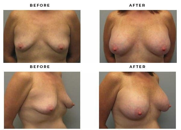 Before & After Boob Job Pictures of Patients Case Study 2137 · Gemini Plastic Surgery · Los Angeles · Orange County · Inland Empire