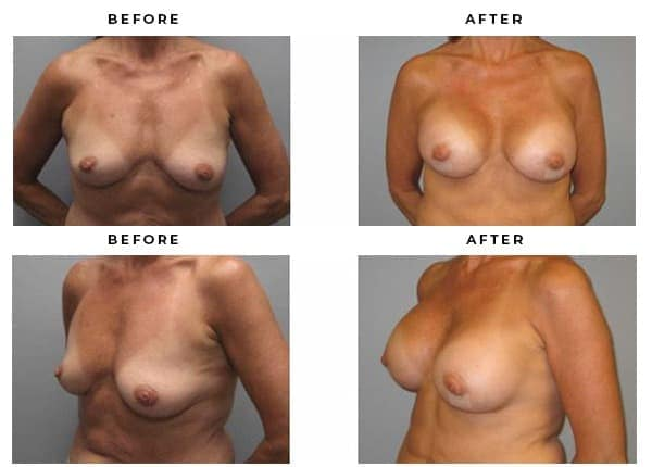 Before & After Breast Implant Examples. Case study #3402 from Dr. Della Bennett MD of Gemini Plastic Surgery · Los Angeles