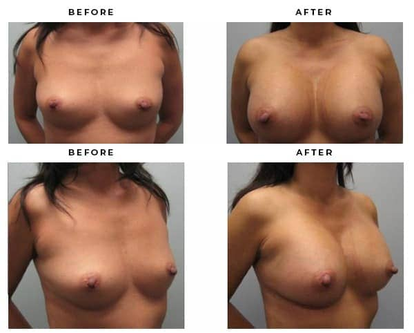 Breast Augmentation Images from Gemini Plastic Surgery. Case Study 3050