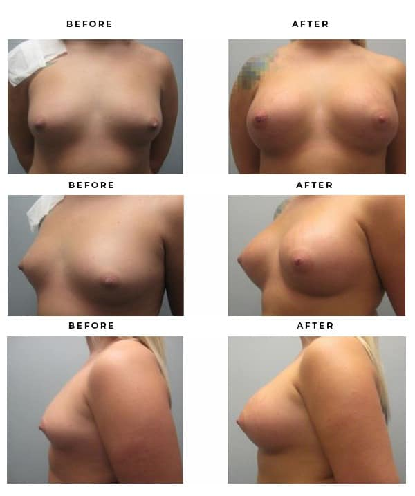 Before & After Images of Breast Augmentation by Dr Della Bennett of Gemini Plastic Surgery in Southern California. Case Study #3080