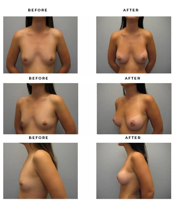 Before & After Breast Implant Photos from Dr Della Bennett Md of Gemini Plastic Surgery. Case #3088