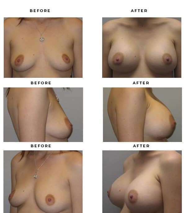 Before & After Photos- Breast Reconstruction- Dr. Della Bennett, MD. of Gemini Plastic Surgery in Los Angeles, Orange County, Inland Empire & San Bernadino. Case Study #3104