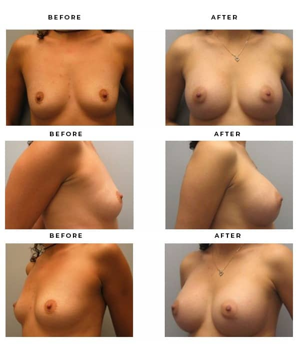Before & After Pics- Boob Job- Dr. Della Bennett, MD. of Gemini Plastic Surgery in Rancho Cucamonga. Case Study #3136
