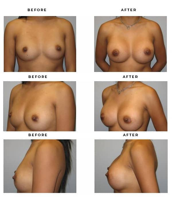 Before & After Pics- Boob Job - Dr. Della Bennett, MD. of Gemini Plastic Surgery in Rancho Cucamonga. Top Board Vertified Plastic Surgeon. Case Study #3160