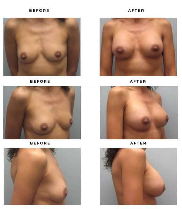 Before & After Pics- Breast Augmentation - Dr. Della Bennett, MD. of Gemini Plastic Surgery in Rancho Cucamonga. Best Board Certified Plastic Surgeon in Southern California. Case Study #3182