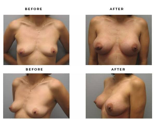 Before & After Photos- Breast Reconstruction - Dr. Della Bennett, MD. of Gemini Plastic Surgery in Rancho Cucamonga. Top Board Certified Plastic Surgeon in Southern California. Case Study #3206