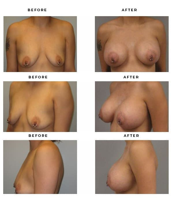 Before & After Photos- Breast Reconstruction - Dr. Della Bennett, MD. of Gemini Plastic Surgery in Rancho Cucamonga. Top Board Certified Plastic Surgeon in Southern California. Case Study #3212