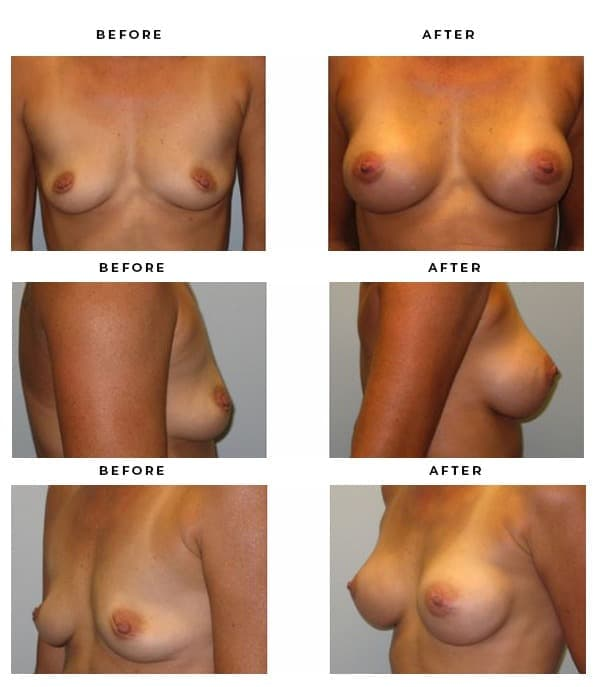 Before & After Images- Breast Reconstruction - Dr. Della Bennett, MD. of Gemini Plastic Surgery in Rancho Cucamonga. Top Board Certified Plastic Surgeon in Southern California. Case Study #3221