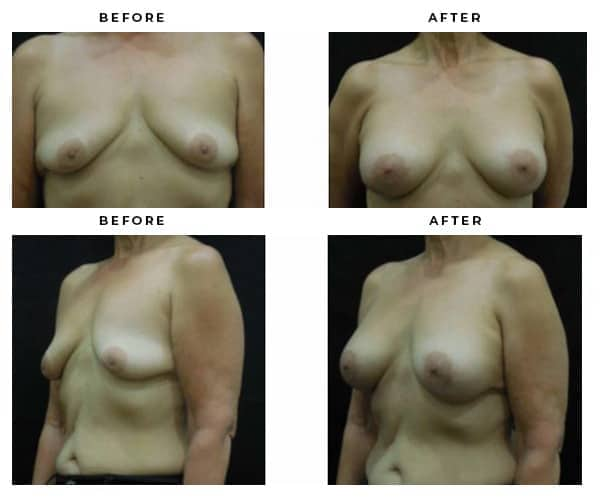 before and after breast implant gallery - case study 4608 - gemini plastic surgery - san bernadino county