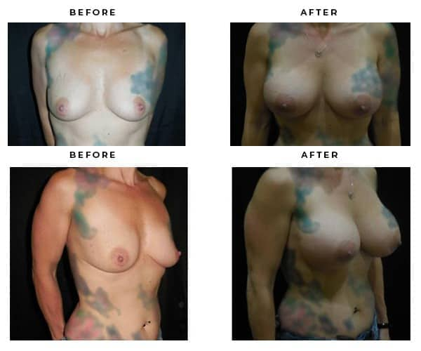 Before and After - Breast Augmentation - Case Study 4683 - Gemini Plastic Surgery - Inland Empire