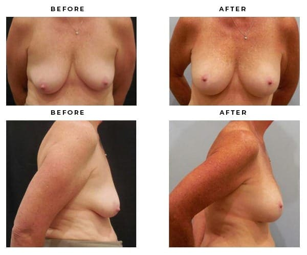 before-after-gallery-breast-augmentation-case-4698-600x500
