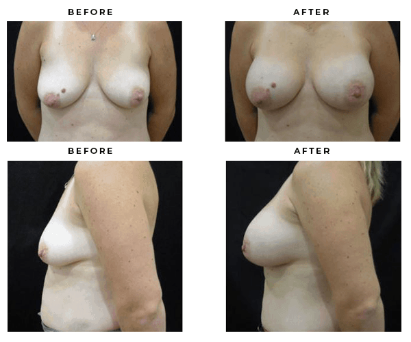 before and after breast augmentation gallery - case 4851- gemini plastic surgery