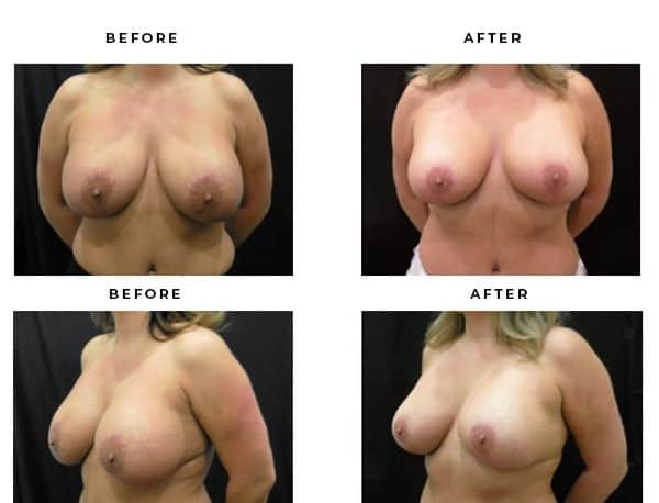 Before & After Pics- Breast Lift Procedures. View Scars and End Results - Chief of Plastic Surgery- Dr. Della Bennett, MD. of Gemini Plastic Surgery - Best Breast Lift Surgery- Best Board Certified Plastic Surgeon in in Los Angeles, Orange County, Inland Empire & San Bernadino. Case Study #4714