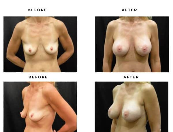Before & After Gallery- Breast Lift Procedures. View Scars and End Results - Chief of Plastic Surgery- Dr. Della Bennett, MD. of Gemini Plastic Surgery - Best Breast Lift Surgery- Best Board Certified Plastic Surgeon in Rancho Cucamonga. Case Study #4736