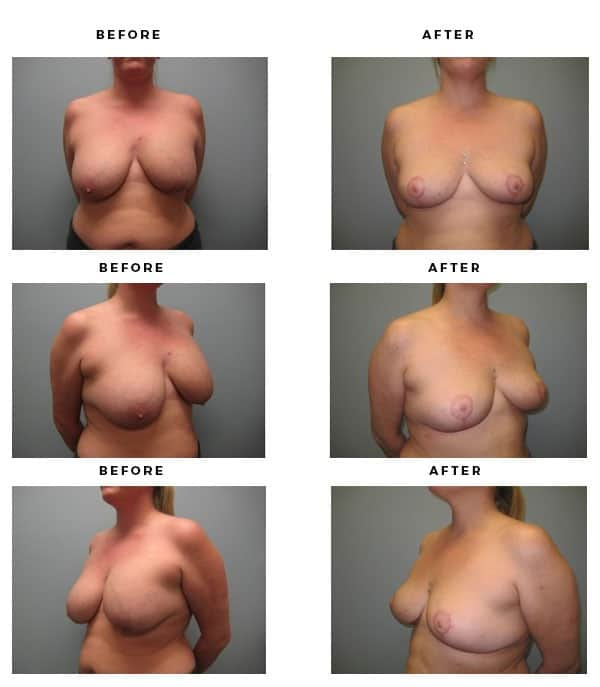 Before & After Pics - Remove Breast Implants and Lift - Dr. Della Bennett, MD. of Gemini Plastic Surgery - Los Angeles, Orange County, Inland Empire, Riverside County - Case Study #2237