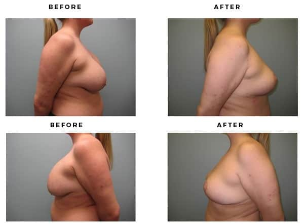 Before & After Images - Remove Breast Implants and Lift - Dr. Della Bennett, MD. of Gemini Plastic Surgery - Los Angeles, Orange County, Inland Empire, Riverside County - Case Study #2237