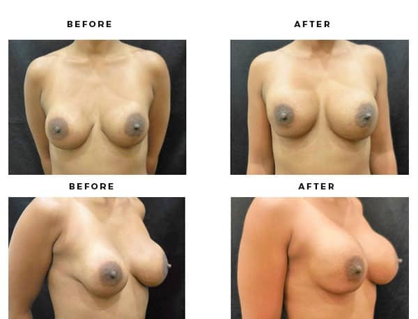 Before & After Photos- Remove and Replace Implants - Dr. Della Bennett, MD. of Gemini Plastic Surgery - Top Board Certified Plastic Surgeon in Inland Empire & San Bernadino County.