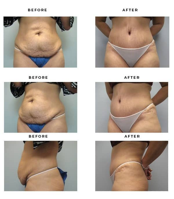 Before & After Pics- Abdominoplasty Treatments - Dr. Della Bennett, MD. of Gemini Plastic Surgery in Rancho Cucamonga. Top Board Certified Plastic Surgeon. Case Study #2340