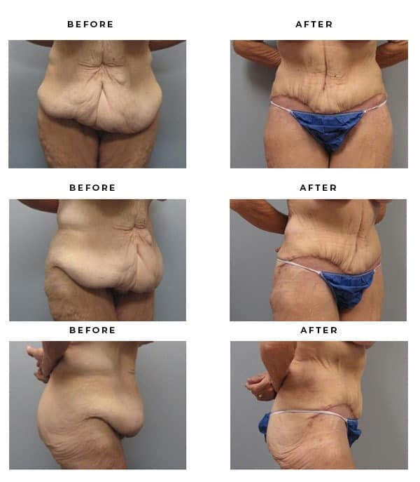 Before & After Images- Abdominoplasty, Lipo, Mini Tummy Tuck - Dr. Della Bennett, MD. of Gemini Plastic Surgery in Riverside County. Top Board Certified Plastic Surgeon in Southern California. Case Study #2804
