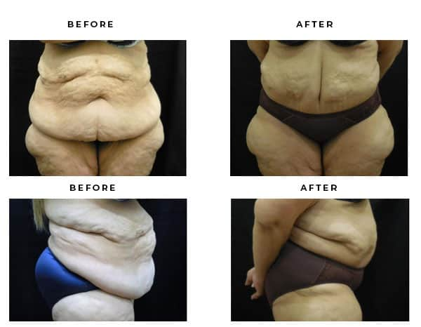 Before & After Images- Abdominoplasty- Dr. Della Bennett, MD. of Gemini Plastic Surgery in Rancho Cucamonga. Case Study #4710