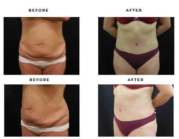 Before & After Pics- Abdominoplasty- Dr. Della Bennett, MD. of Gemini Plastic Surgery in Southern Cailfornia. Case Study #4713
