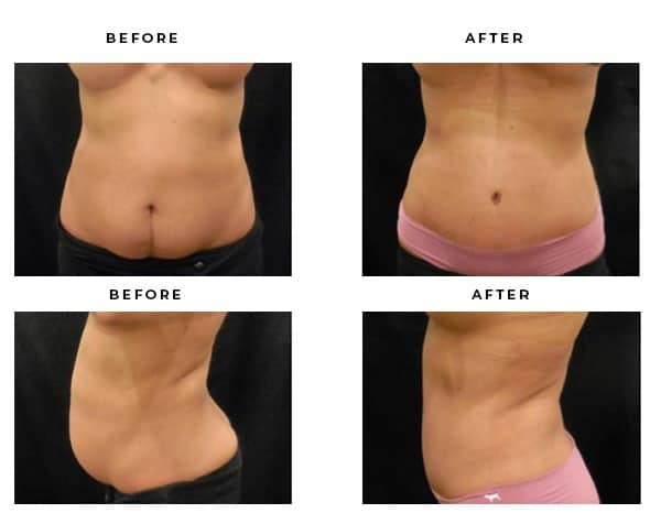Before & After Photos- Abdominoplasty- Dr. Della Bennett, MD. of Gemini Plastic Surgery in Rancho Cucamonga. Case Study #4831