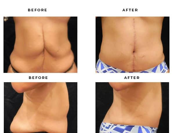 Before & After Photos- Abdominoplasty- Dr. Della Bennett, MD. of Gemini Plastic Surgery in Los Angeles, Orange County, Inland Empire & San Bernadino. Case Study #4846