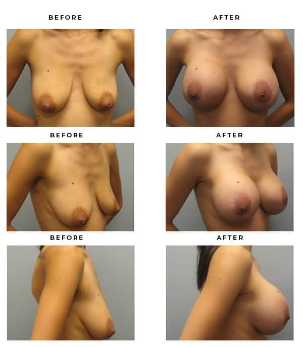Before & After Photos- Breast Augmentation and Lift Surgery Information. Scars and End Results - Chief of Plastic Surgery- Dr. Della Bennett, MD. of Gemini Plastic Surgery - Best Breast Lift Surgery- Top Certified Plastic Surgeon in Los Angeles, Orange County, Inland Empire & Rancho Cucamonga, Ca. Case Study #2204