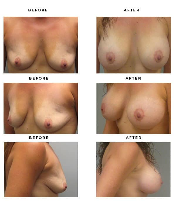 Before & After Images- Breast Augmentation and Lift Recovery Information Scars and End Results - Chief of Plastic Surgery- Dr. Della Bennett, MD. of Gemini Plastic Surgery - Award Winning Breast Lift Surgery- Top Certified Plastic Surgeon in Los Angeles, Orange County, Inland Empire & Rancho Cucamonga, Ca. Case Study #2210