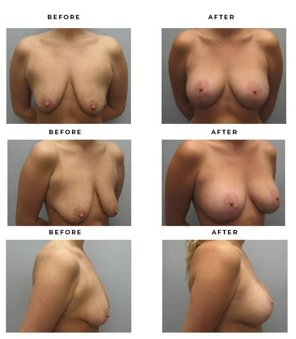 Before & After Pics- Breast Implants and Lift Recovery Information Scars and End Results - Chief of Plastic Surgery- Dr. Della Bennett, MD. of Gemini Plastic Surgery - Award Winning Breast Lift Surgery- Best Certified Plastic Surgeon in Los Angeles, Orange County, Inland Empire & Rancho Cucamonga, Ca. Case Study #2216