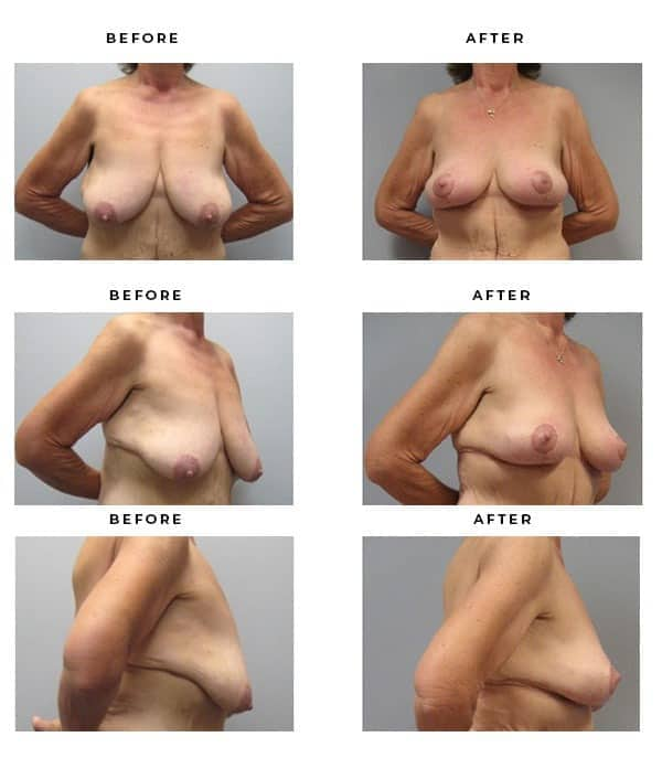 Before & After Gallery- Breast Lift Surgery. Scars and End Results - Chief of Plastic Surgery- Dr. Della Bennett, MD. of Gemini Plastic Surgery - Top Breast Lift Surgeon- Top Ranked Board Certified Plastic Surgeon in Los Angeles, Orange County, Inland Empire & Riverside County, Ca. Case Study #3270