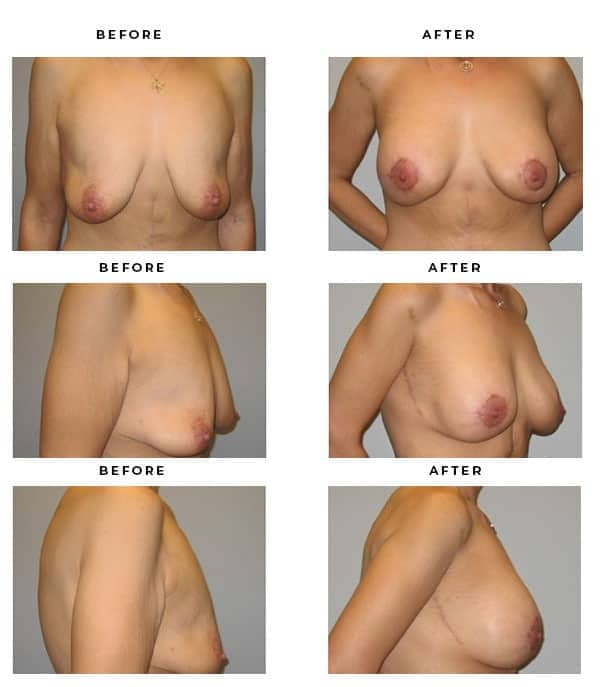 Before & After Images- Breast Lift Surgery. Scars and End Results - Chief of Plastic Surgery- Dr. Della Bennett, MD. of Gemini Plastic Surgery - Top Breast Lift Surgeon- Best Ranked Board Certified Plastic Surgeon in Los Angeles, Orange County, Inland Empire & Rancho Cucamonga, Ca. Case Study #3278